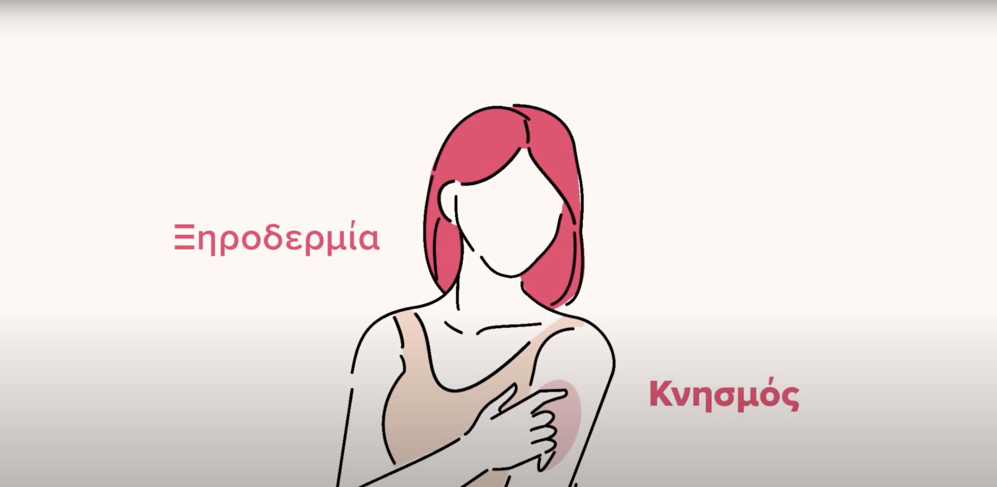 Νέο ενημερωτικό βίντεο για την Ατοπική Δερματίτιδα | Επιδέρμια